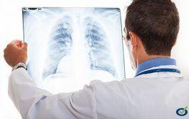 Descarga: OIT, La prevención de las enfermedades profesionales