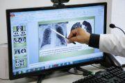 Atiende IMSS daño pulmonar y dificultad respiratoria causadas por COVID-19.